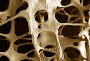 Osteoporoza według Studio Fit